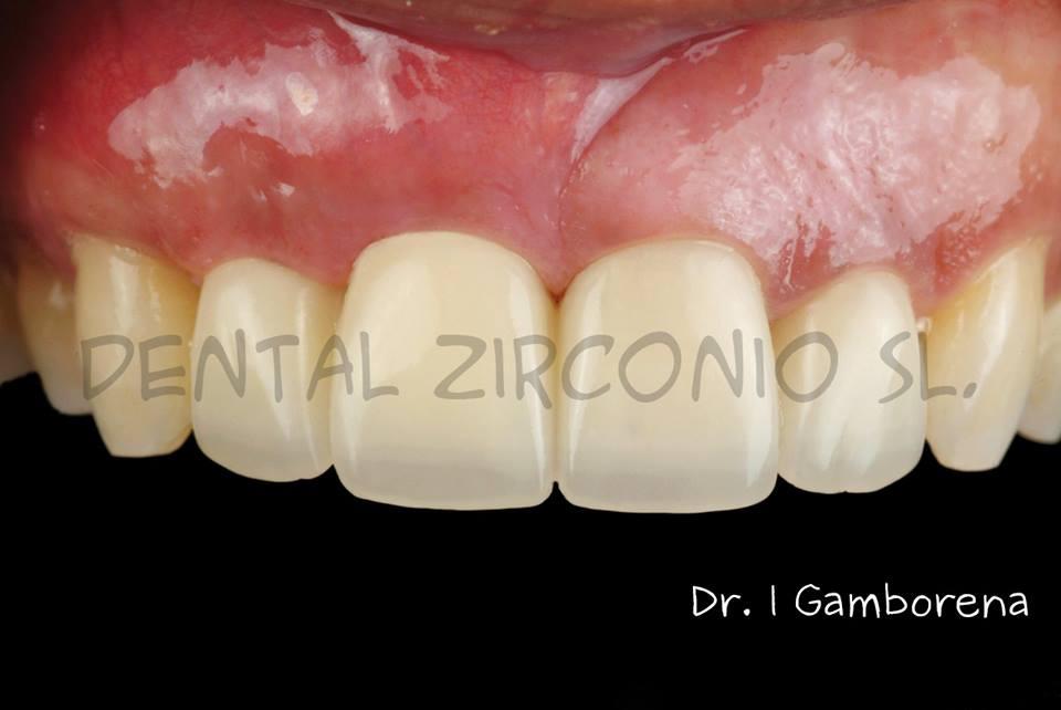Nueva Publicacion de Dental Zirconio realizado con nuestro PMMA multicapa TRILUX